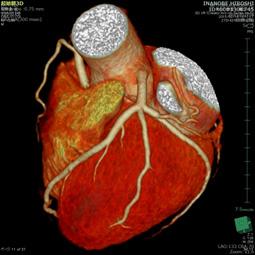 心臓CT検査画像