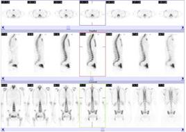 骨シンチグラフィその3