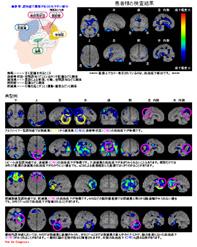 脳血流シンチグラフィその2