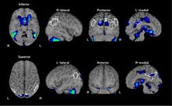 脳血流シンチグラフィその3