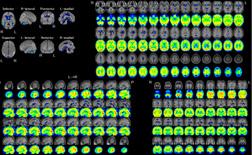 脳血流シンチグラフィその4