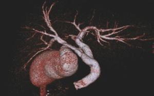 経静脈的胆道造影(Drip Infusion Cholangigraphy : DIC)