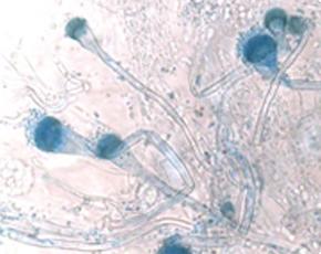 〔アスペルギルスの顕微鏡画像〕